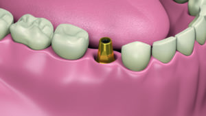Implants dentaires processus d'installation Animation 3D