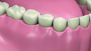 Implants dentaires résultat final