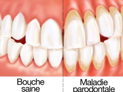 Maladie paradontale chirurgien dentiste en Espagne