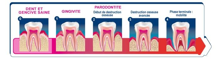 Parodontologie dentiste en Espagne